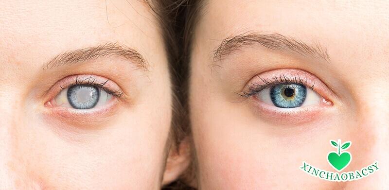 Mắt có màng mờ – Cảnh báo bệnh nguy hiểm cần trị ngay
